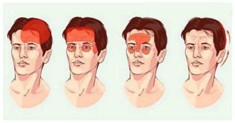migraine headaches chiropractic treatment